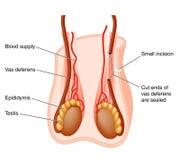 Exécution de vasectomie Photographie stock