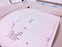 Exame da monitoração do bebê Imagens de Stock Royalty Free