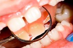 Exame dental fotografia de stock royalty free