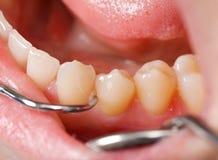 Exame dental detalhado imagens de stock