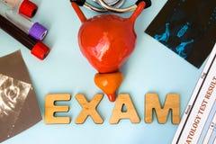 Exame no exame da bexiga da urina da urologia e na glândula de próstata da endocrinologia Modelo da anatomia da bexiga com o b ce Imagens de Stock