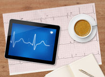 Examen d'électrocardiogramme Photo libre de droits