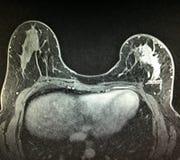 Examen de masse irrégulier de mri de cancer du sein photo stock