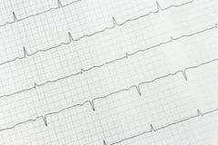 Examen del corazón. Fotografía de archivo libre de regalías