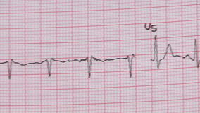 Examen del electrocardiograma almacen de video