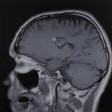 Examen för hjärna för Mri cavernomanervknutar fotografering för bildbyråer