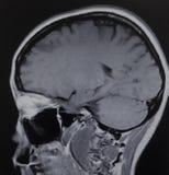 Examen för neuroma för Mri schwannomahjärna akustisk royaltyfri fotografi