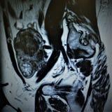 Examen för patologi för livmoder för Mri fibroid necrotic royaltyfri foto