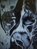 Examen för patologi för livmoder för Mri fibroid necrotic arkivbilder