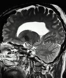Examen pinéal de mri de kyste de pathologie de cerveau illustration stock