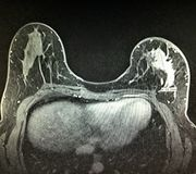 Examen total irregular del mri del cáncer de pecho foto de archivo