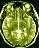 Examen van de pathologiemri van de hersenen het holle misvorming stock illustratie