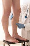Examen vasculaire de membre inférieur d'homme par phlebologist photos stock