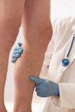 Examen vasculaire de membre inférieur d'homme par phlebologist image libre de droits