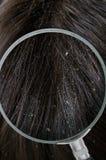 Examiming dandruff biali płatki w włosy z powiększać - szkło fotografia stock