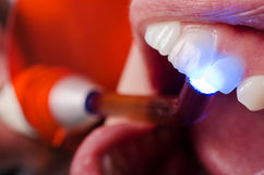 Examination of teeth vitality with UV lamp. Close up shot of examination teeth vitality with UV lamp pressed on teeth Stock Photography
