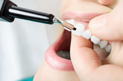Examine the teeth vitality. Close up Stock Photography