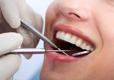 Examining mouth Royalty Free Stock Photo