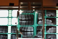 Examining teeth's structure Royalty Free Stock Photography