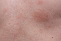 Example dermatological skin allergy Royalty Free Stock Photo