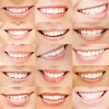 Examples of female smiles. Healthcare, medical and stomatology concept - examples of female smiles royalty free stock photography