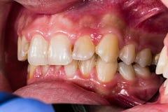 Exaples didactiques des problèmes dentaires photo libre de droits