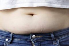 Exceso de grasa en el cierre del abdomen para arriba, el concepto de pérdida de peso imagenes de archivo