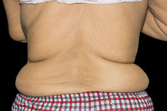 Excess fat around the waist  on black Royalty Free Stock Photo