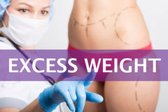 Excess weight written on a virtual screen. Internet technologies in medicine concept. medical doctor presses a finger on Royalty Free Stock Photography