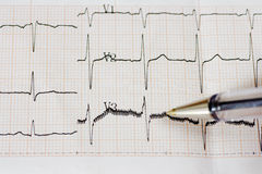 Arrhythmia Stock Photo