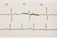 Arrhythmia Royalty Free Stock Photos