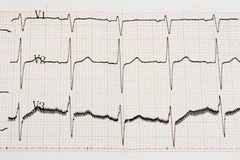 Arrhythmia Stock Image