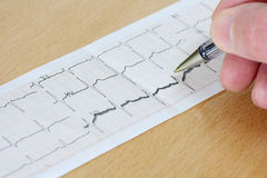 Arrhythmia Royalty Free Stock Images