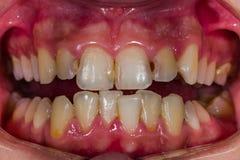 Exemples diagnostiques dentaires photographie stock libre de droits