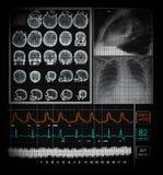 Exhibición con las funciones del paciente ilustración del vector