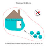 Explanation of the disease diabetes first type of diabetes in children's pictures Stock Photography