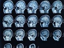 Exploración de cerebro de MRI Foto de archivo