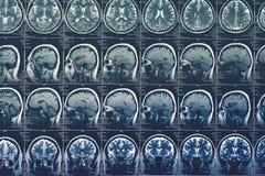 Exploración de cerebro, MRI o radiografía o imagen de resonancia magnética de la cabeza Concepto de la tomografía de la neurologí imagen de archivo