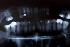 Exploración de la radiografía de los dientes de los seres humanos Imágenes de archivo libres de regalías