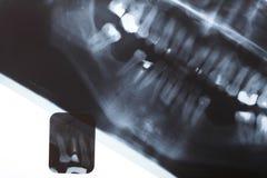 Exploración de la radiografía de los dientes de los seres humanos Imagen de archivo libre de regalías