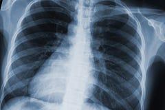 Exploración de la radiografía del pecho imagen de archivo