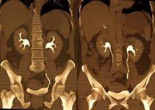 Exploración de la tomografía computada de la carrocería (CT) Fotografía de archivo libre de regalías