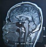 Exploración de MRI Fotografía de archivo libre de regalías