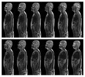 Exploración de MRI Fotos de archivo libres de regalías
