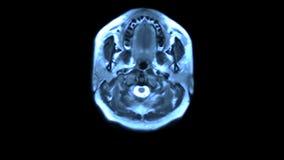 Exploración de MRI ilustración del vector