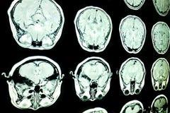 Exploración de MRI del cerebro imágenes de archivo libres de regalías