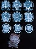 Exploración de cerebro de Mri Imagenes de archivo