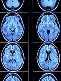 Exploración del cerebro de arriba Foto de archivo libre de regalías