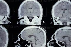 Exploración del CT de la cabeza Fotografía de archivo