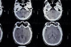 Exploración del CT de la cabeza Fotos de archivo